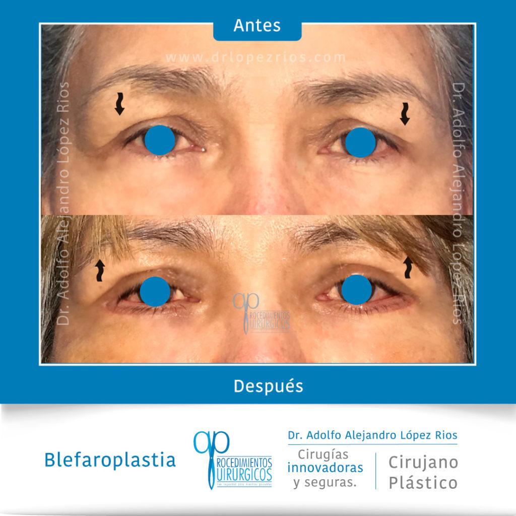 caso-2-blefaroplastia-2-enero