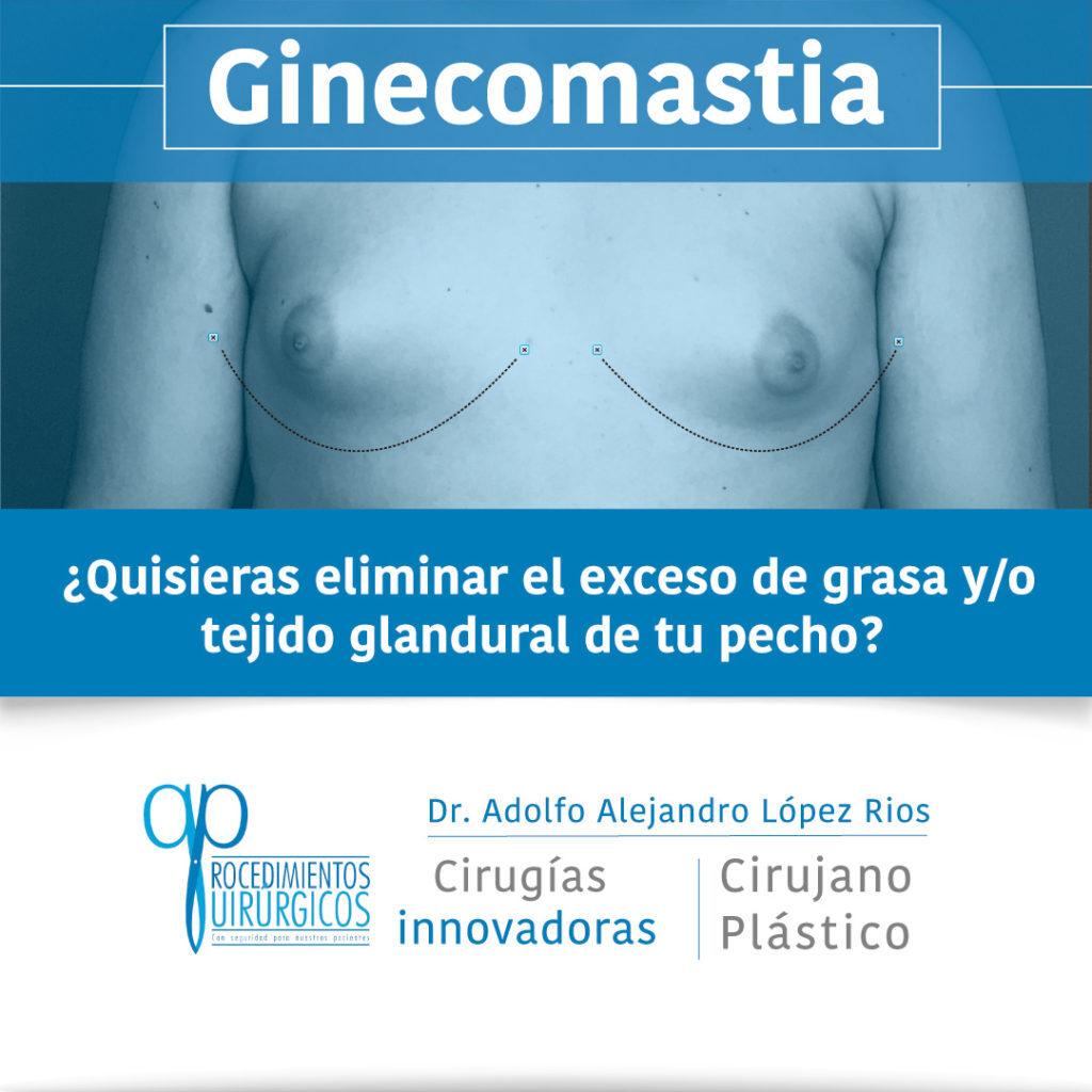ginecomastia-1-v
