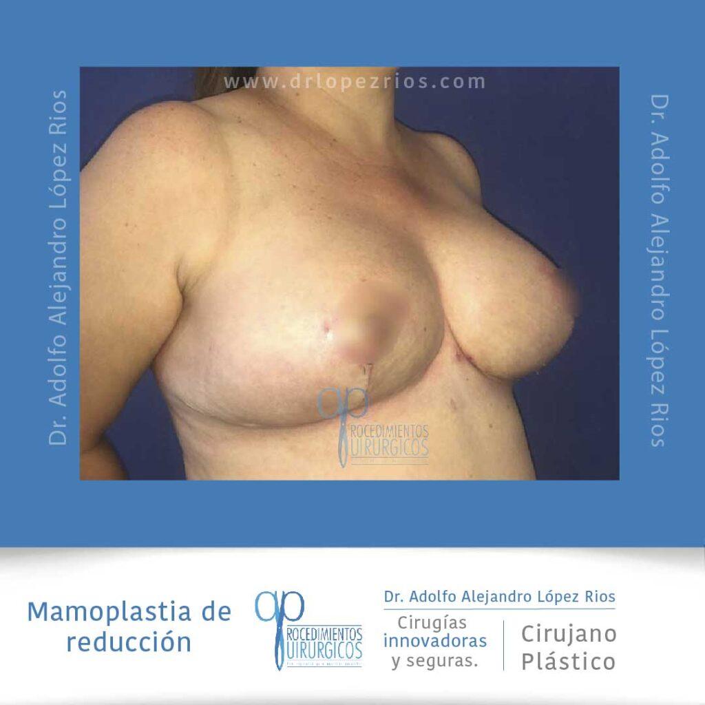 mamoplastia reducción