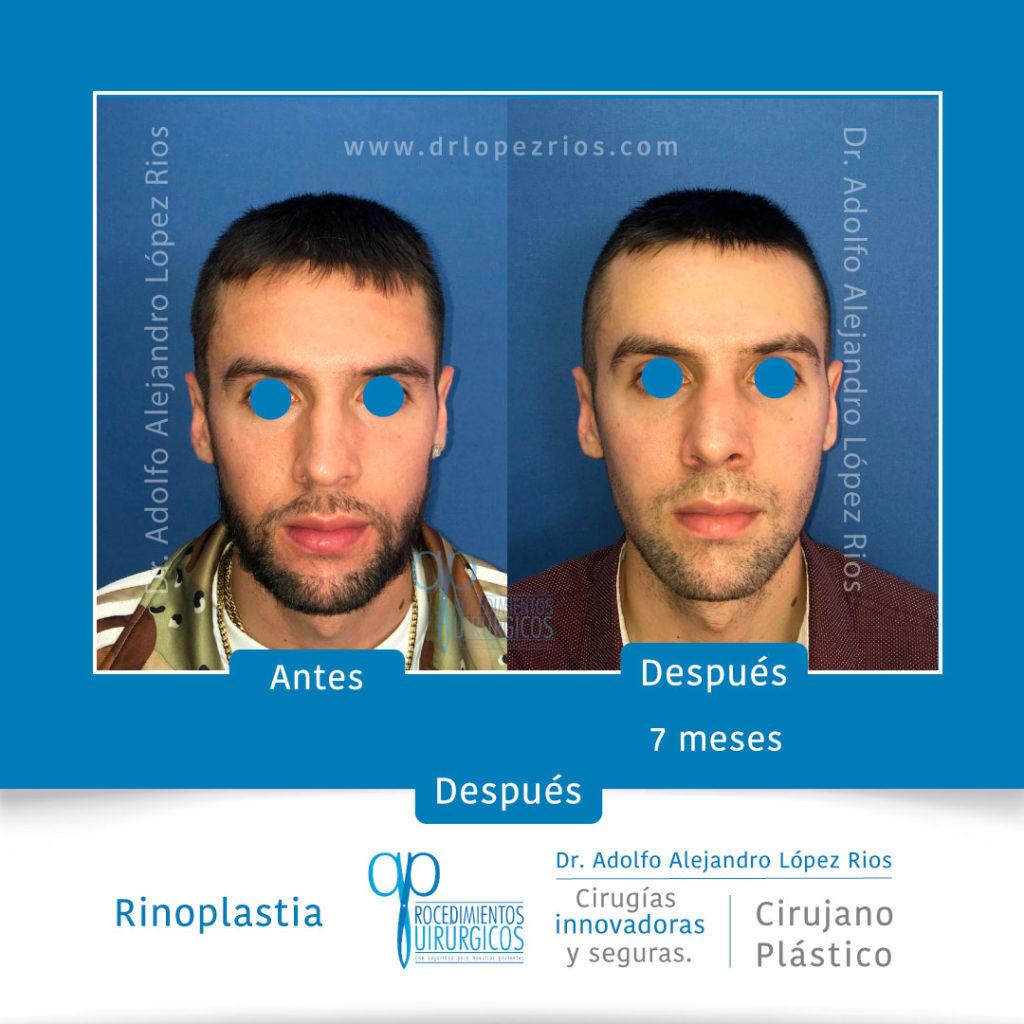 rinoplastiacaso1frente1