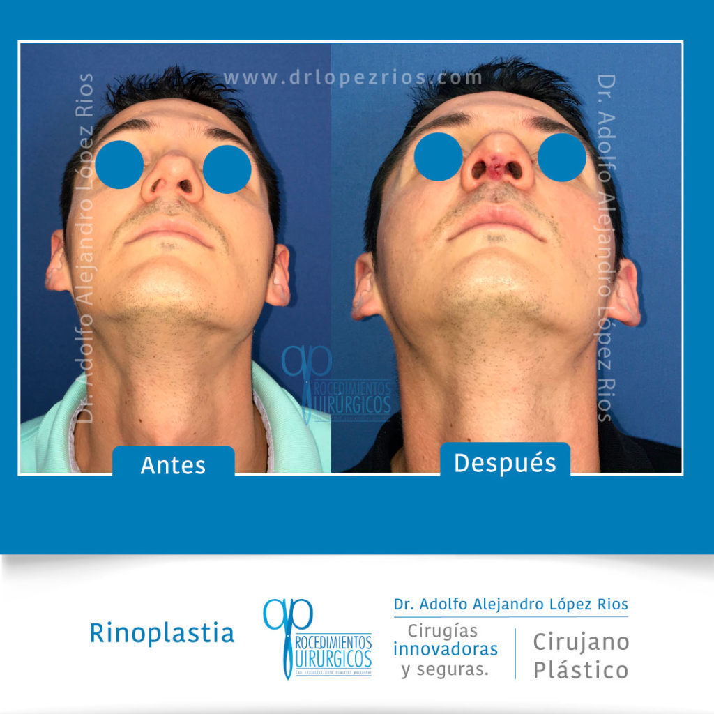 rinoplastiacaso23