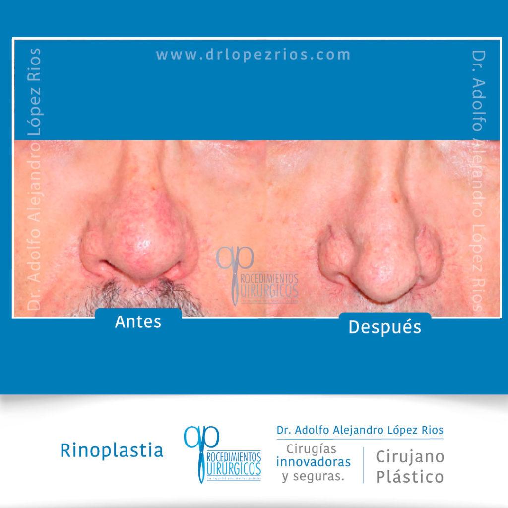 rinoplastiacaso3