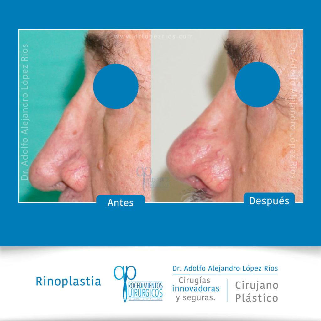 rinoplastiacaso33
