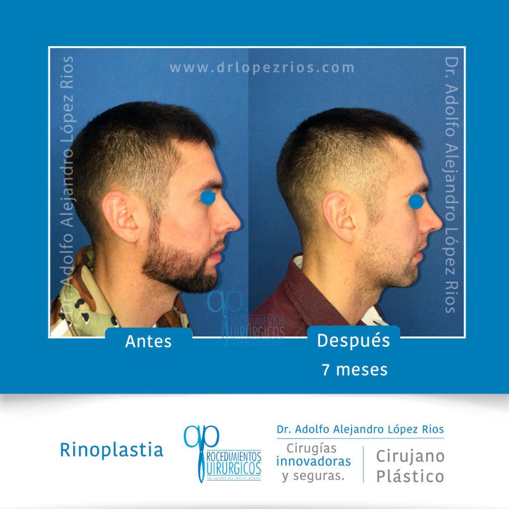 rinoplastialateral1caso1