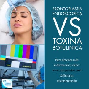frontoplastia vs toxina